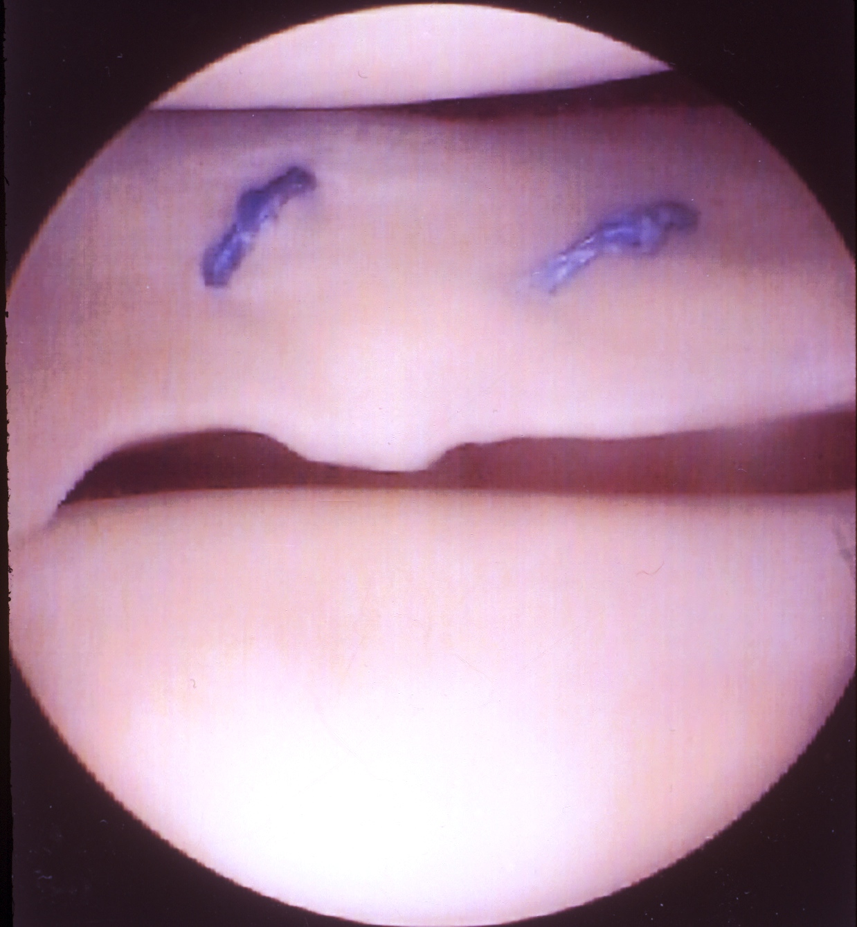 LATERAL MENISCUS TEAR SURGERY RECOVERY